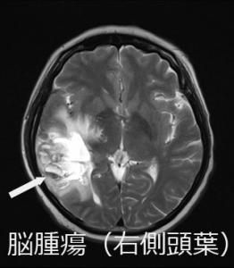 MRI 右側頭葉腫瘍