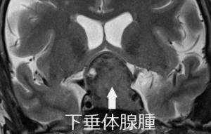 MRI 下垂体腺腫