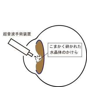 白内障手術1