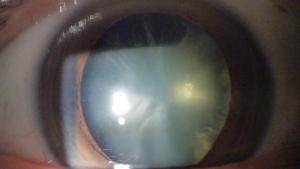 白内障の写真 散瞳後