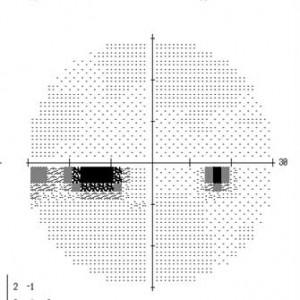 ハンフリー視野検査 緑内障