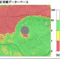 OCT 緑内障 黄斑