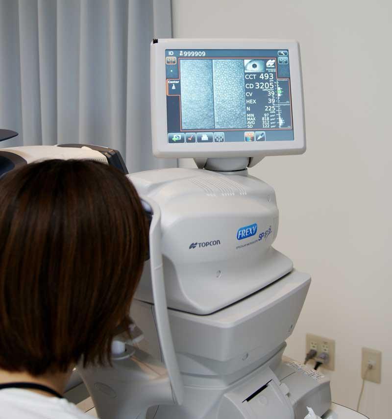 角膜内皮計