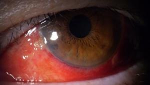 瞼裂斑炎による結膜下出血